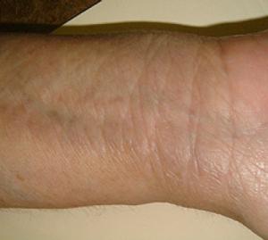 Eczema After