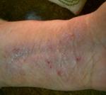 Eczema Before Treatment