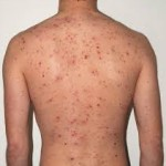 Chinese medicine is used<br/> to treat adult acne at the<br/> Skin Clinic in Dublin.