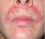 Perioral-Dermatitis-e1365955583922
