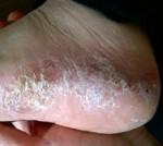 Pustular-Psoriasis-e1365955506410